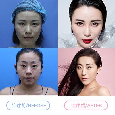 宿州天使光子嫩肤 活力美肌 水氧一下 针对解决色斑、细纹、青春痘、红血丝等