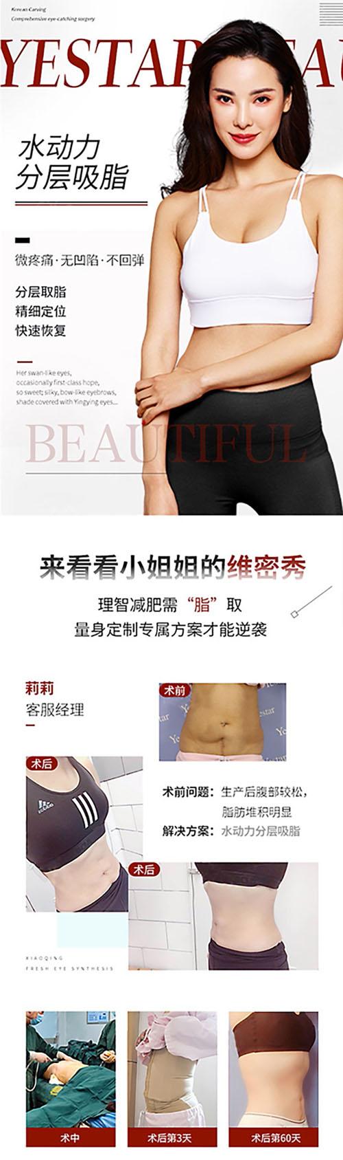 台州艺星吸脂瘦大腿 精雕美塑吸脂 创伤小恢复快 拒绝术后松弛