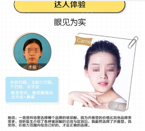 台州艺星玻尿酸注射 乔雅登极致 0.8ml NBS定格技术3.0 塑形可维持1年