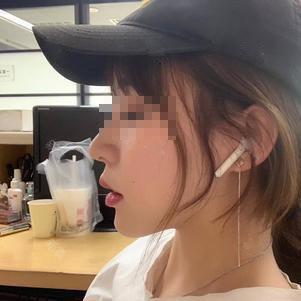 7.10:鼻部修复