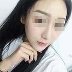假体隆鼻 精致的侧颜也需要一个精致的鼻子才能彰显完美