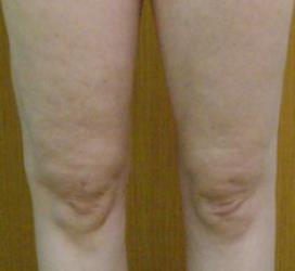 现在腿已经很细了也比较紧致,感觉自己想做梦一样