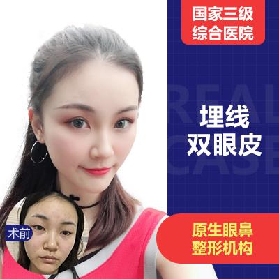 眼部整形双眼皮四川友谊医院李萍优惠手术的封面