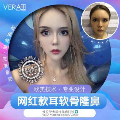 鼻部整形隆鼻天津惟拉亚太医疗美容门诊部邹浅优惠手术的封面