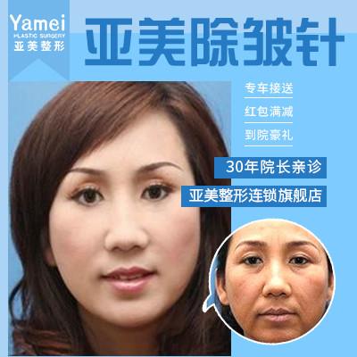 注射除皱保妥适(Botox)除皱金华亚美医院叶彩娣优惠手术的封面