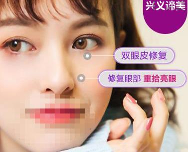 眼部整形双眼皮失败修复兴义谛美医疗美容门诊部陈军优惠手术的封面