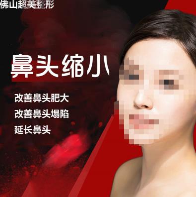 鼻部整形宽鼻缩窄佛山超美医疗美容门诊部吴桐优惠手术的封面