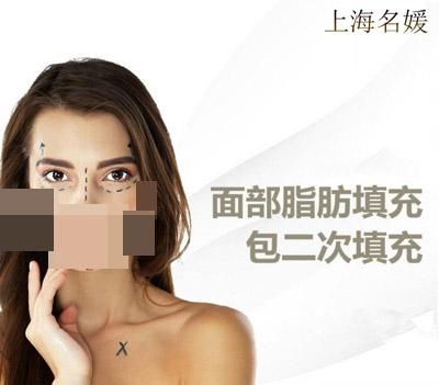 自体脂肪自体脂肪上海名媛医疗美容门诊部沈頔优惠手术的封面