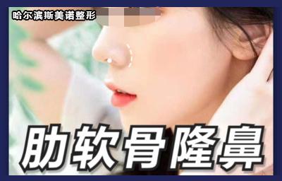 鼻部整形隆鼻哈尔滨斯美诺医疗美容门诊部张宁优惠手术的封面