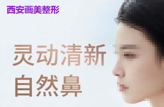 鼻部整形鼻综合整形西安画美医疗美容杨万忠优惠手术的封面